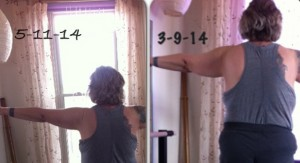 two months of Callanetics changes Susan's arms dramatically